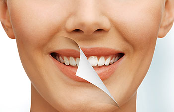Teeth Whitening Cambridge, Ontario